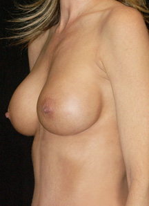 Breast Surgery Photo