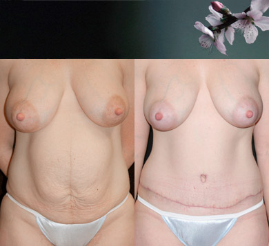 Abdominoplasty-repair-hernia