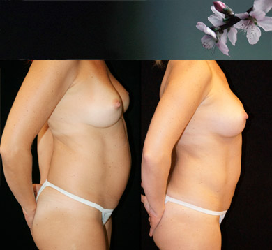 Liposuction of Abs & Hips