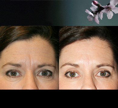 Blepharoplasty-browlift