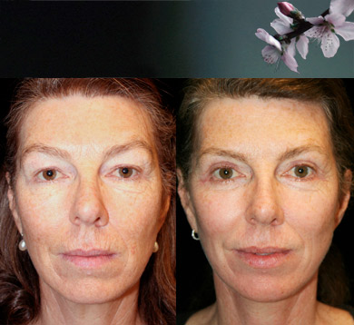 Blepharoplasty-7-skin-augmentation