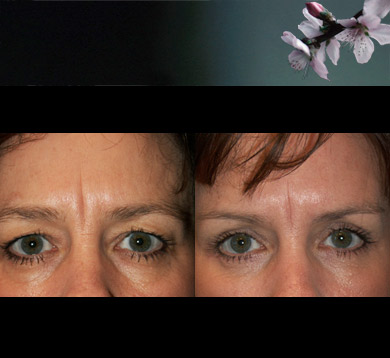 Blepharoplasty-8-browlift