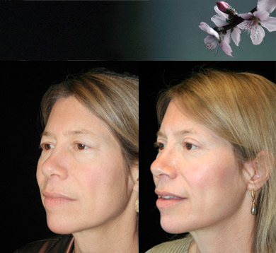 Blepharoplasty-brow-lift-12