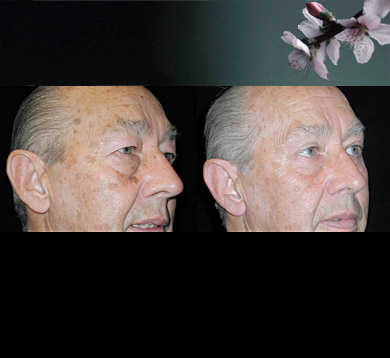 Blepharoplasty-male-3
