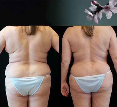 Abdominoplasty/ Liposuction of Flanks