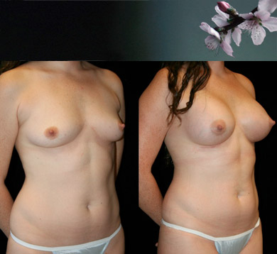Breast-Augmentation-10