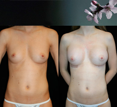 Breast-Augmentation-16