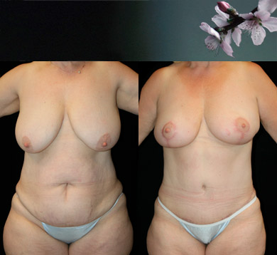 Breast Lift & Abdominoplasty