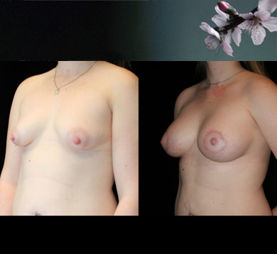 Breast-augment-periolar-lift