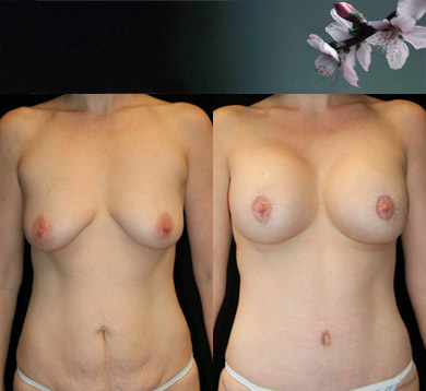 Breast-augment-tummy-tuck