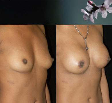 Breast-augmentation-11