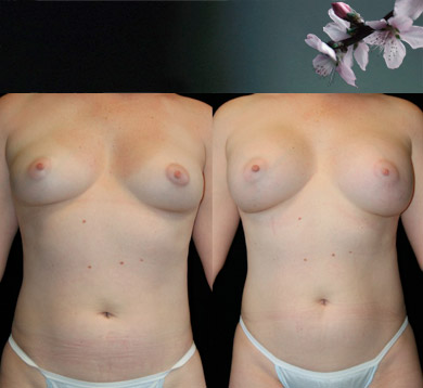 Breast-augmentation-12