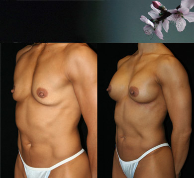 Breast-augmentation-13