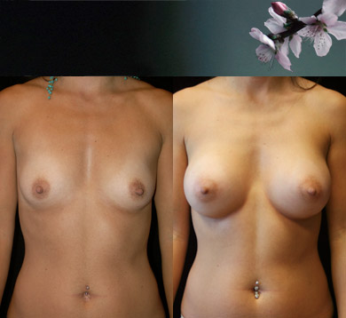 Breast-augmentation-14
