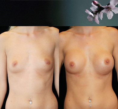 Breast-augmentation-19