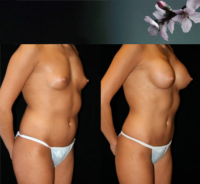 Breast-augmentation-21
