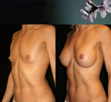 Breast-augmentation-22