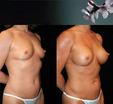 Breast-augmentation-4