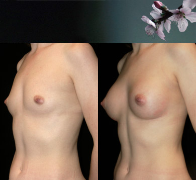 Breast-augmentation-5