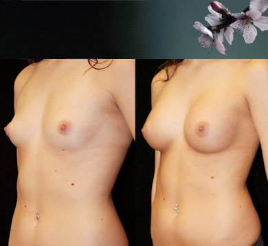 Breast-augmentation-7