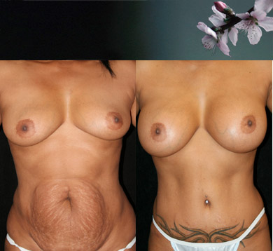 Breast-augmentation-abdominoplasty-3