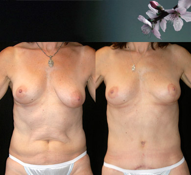 Breast-lift-abdominoplasty-2
