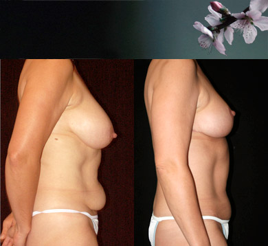 Breast-lift-abdominoplasty