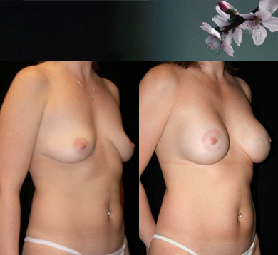 Breast-lift-and-augmentation-2