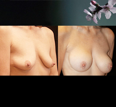 Breast-lift-and-augmentation