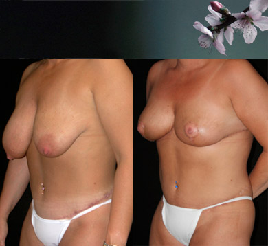 Breast-lift-following-abdominoplasty