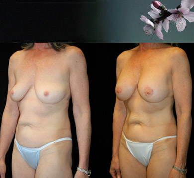 Breast-augment-periareolar-lift