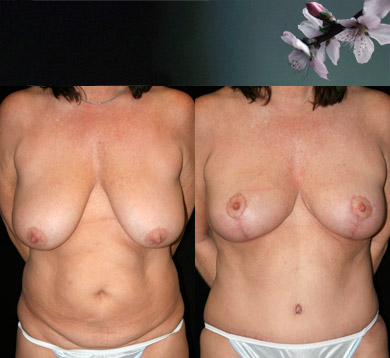 Breast-reduction-abdominoplasty-3