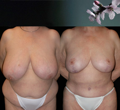 Breast-reduction-abdominoplasty-liposuction
