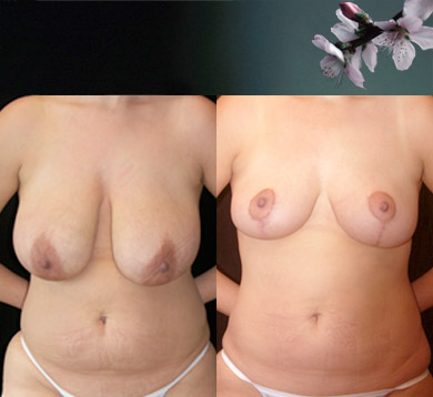 Breast-reduction-liposuction-abdomen-2