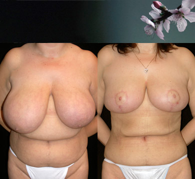 Breast-reduction-liposuction-abdomen-3
