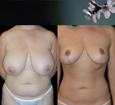 Breast-reduction-liposuction-abdomen-4