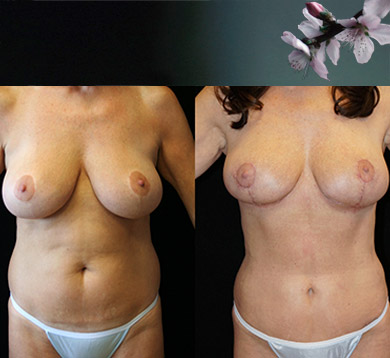 Breast Augmentation, Mini Tummy Tuck & Lipo