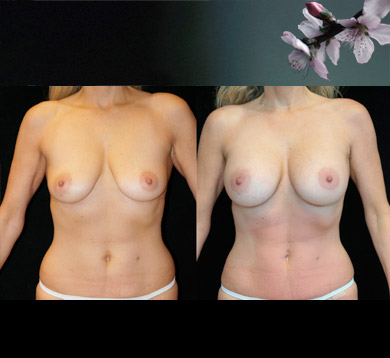 Breast Augmentation & Mini Tummy Tuck