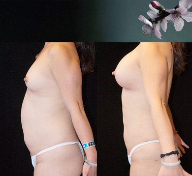 Breast Augmentation & Liposuction of Abs & Flanks