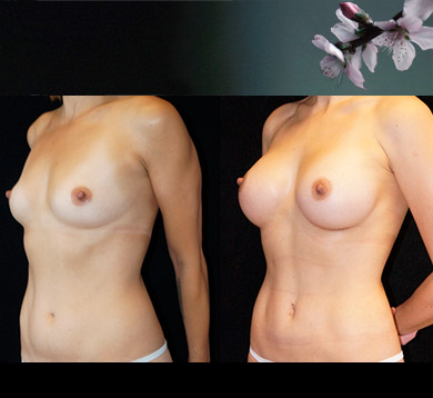 Breast Augmentation & Liposuction abs