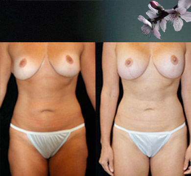 Breast Aug Following Breast Lift