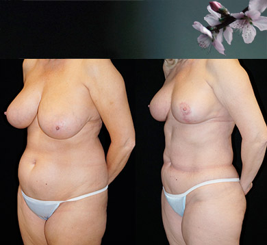 Breast Lift & Lipo Abdomen