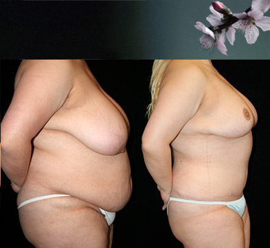 Breast Reduction & Tummy Tuck