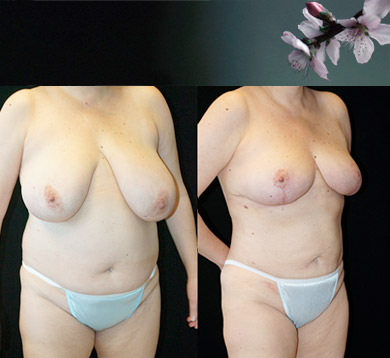 Breast Asymmetry & Liposuction of Trunk