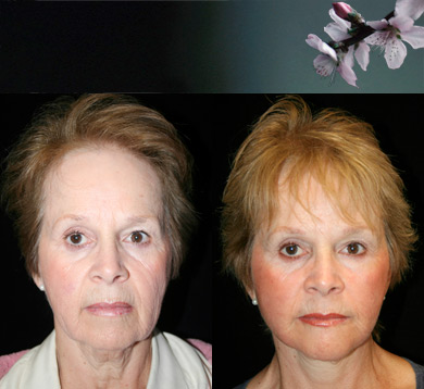 Facelift-1-blepharoplasty-chin-augment