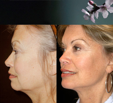 Facelift-5-blepharoplasty
