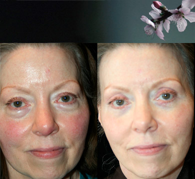 Facelift-Blepharoplasty