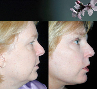 Facelift-blepharoplasty-11
