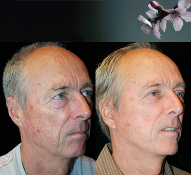 Facelift & Blepharoplasty