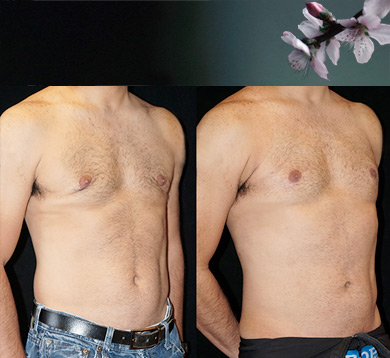 Gynecomastia Repair Using Fat Transfer